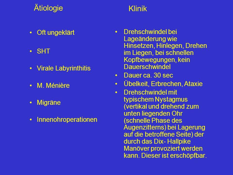 Klinik Ätiologie Oft ungeklärt SHT Virale Labyrinthitis M. Ménière