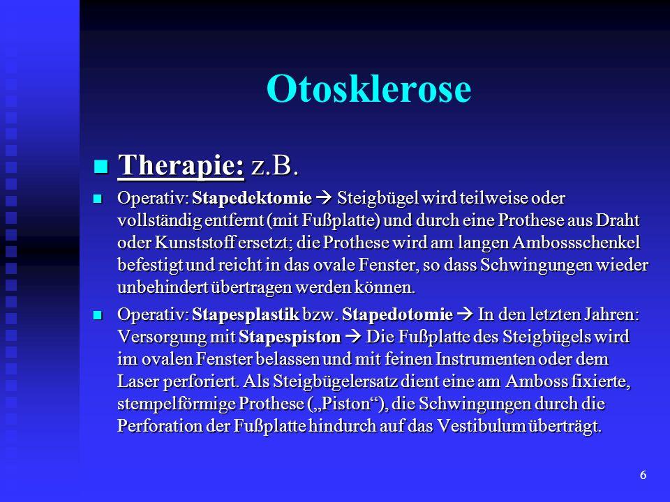 Otosklerose Therapie: z.B.