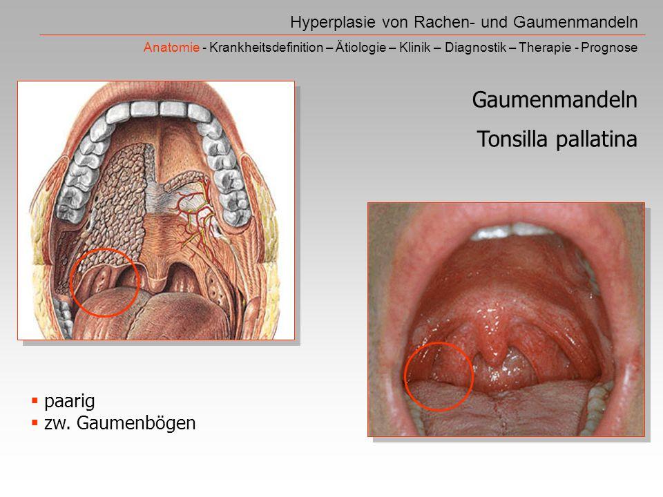 Gaumenmandeln Tonsilla pallatina paarig zw. Gaumenbögen