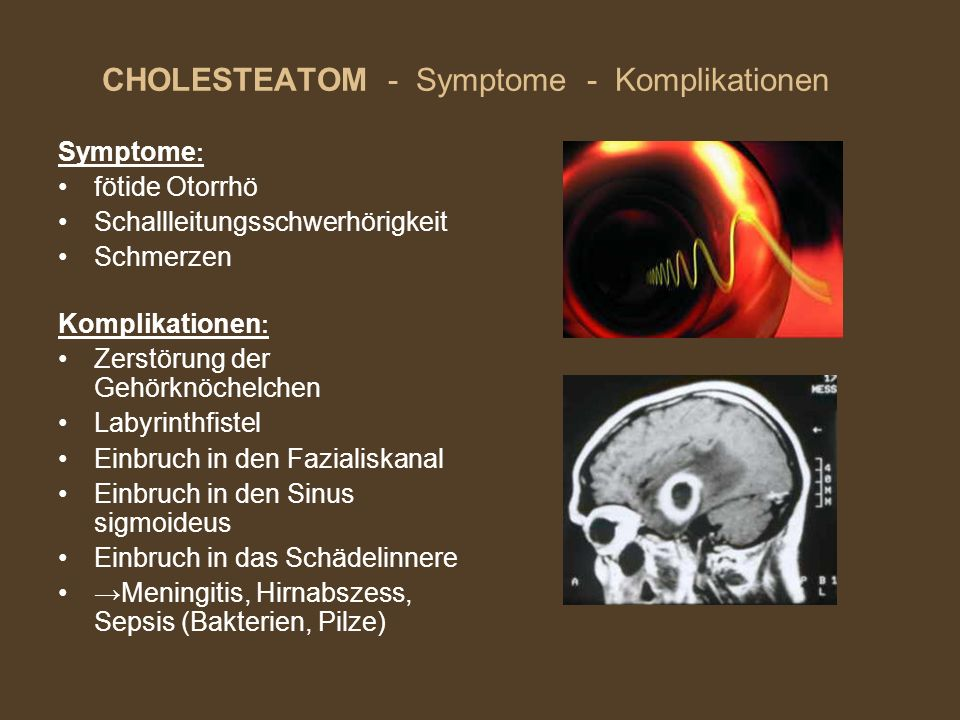 CHOLESTEATOM - Symptome - Komplikationen