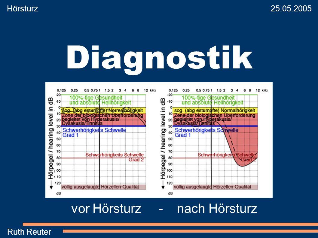 Diagnostik vor Hörsturz - nach Hörsturz Hörsturz 25.05.2005