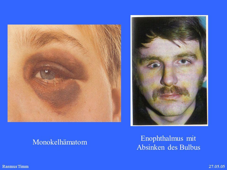 Enophthalmus mit Absinken des Bulbus