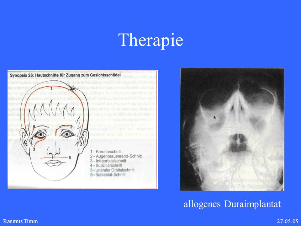 Therapie allogenes Duraimplantat Rasmus Timm 27.05.05