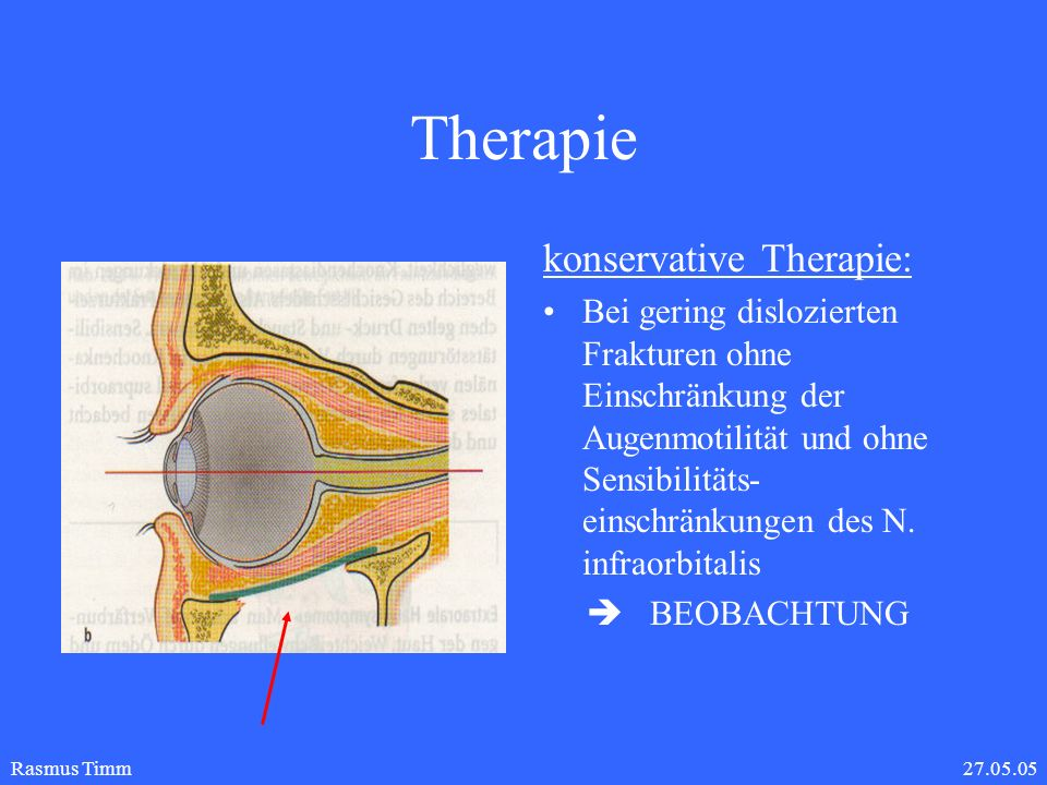 Therapie konservative Therapie:
