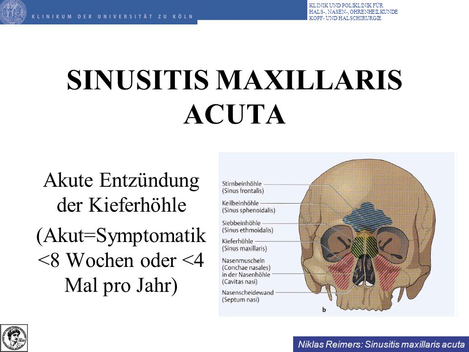 SINUSITIS MAXILLARIS ACUTA