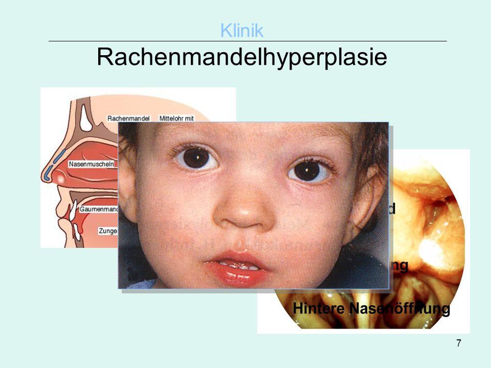 Klinik Rachenmandelhyperplasie