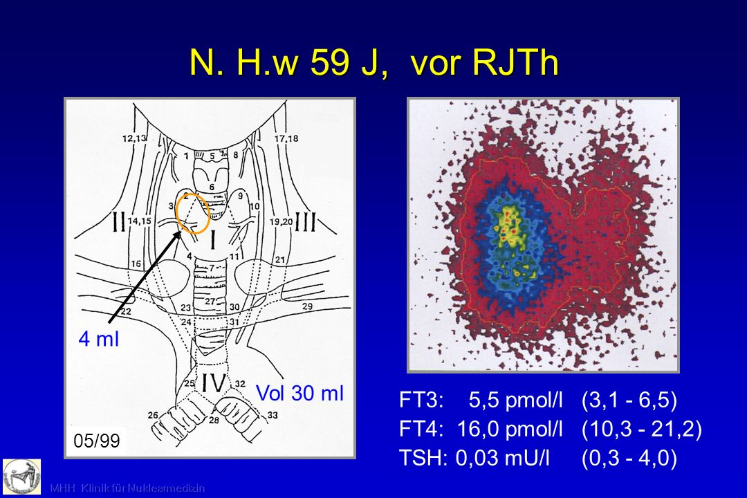 N. H.w 59 J, vor RJTh FT3: 5,5 pmol/l (3,1 - 6,5)
