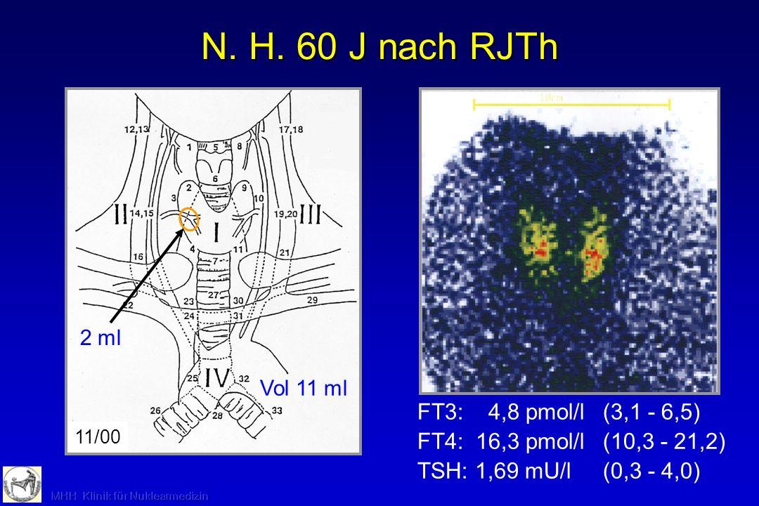 N. H. 60 J nach RJTh FT3: 4,8 pmol/l (3,1 - 6,5)