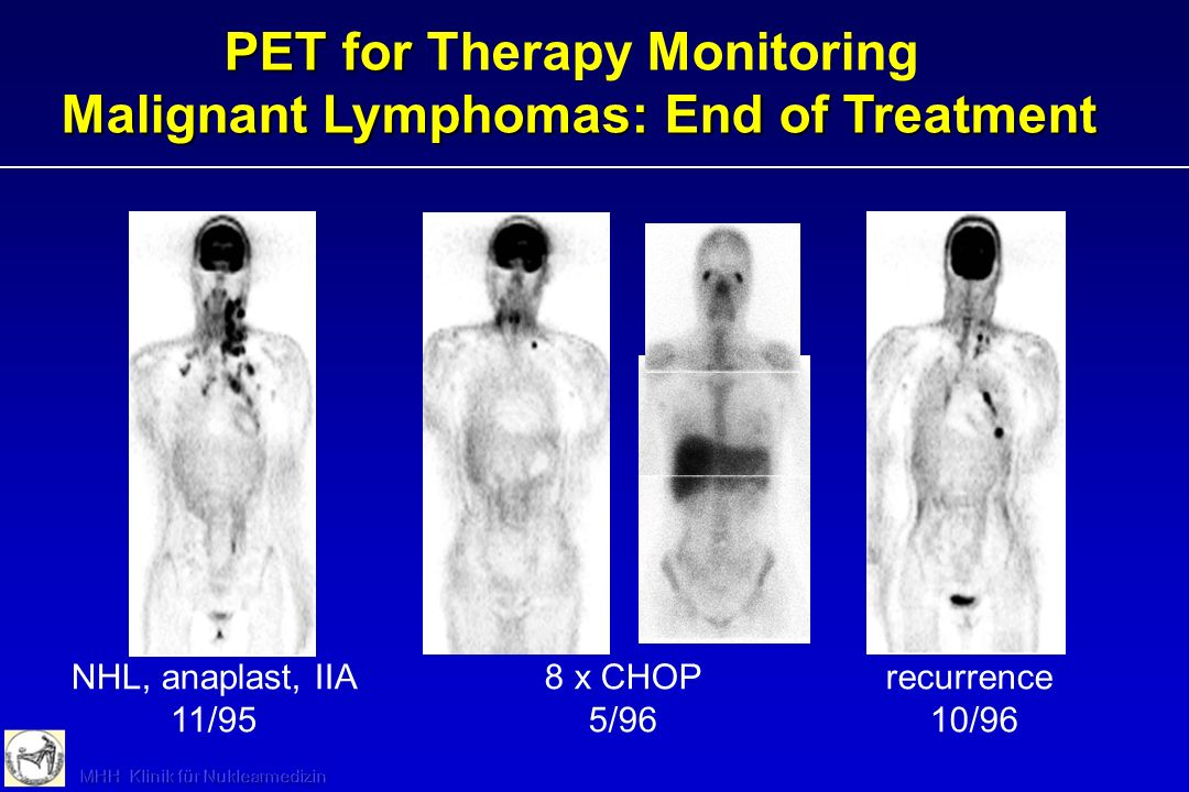PET for Therapy Monitoring Malignant Lymphomas: End of Treatment