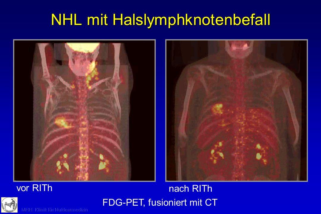 NHL mit Halslymphknotenbefall