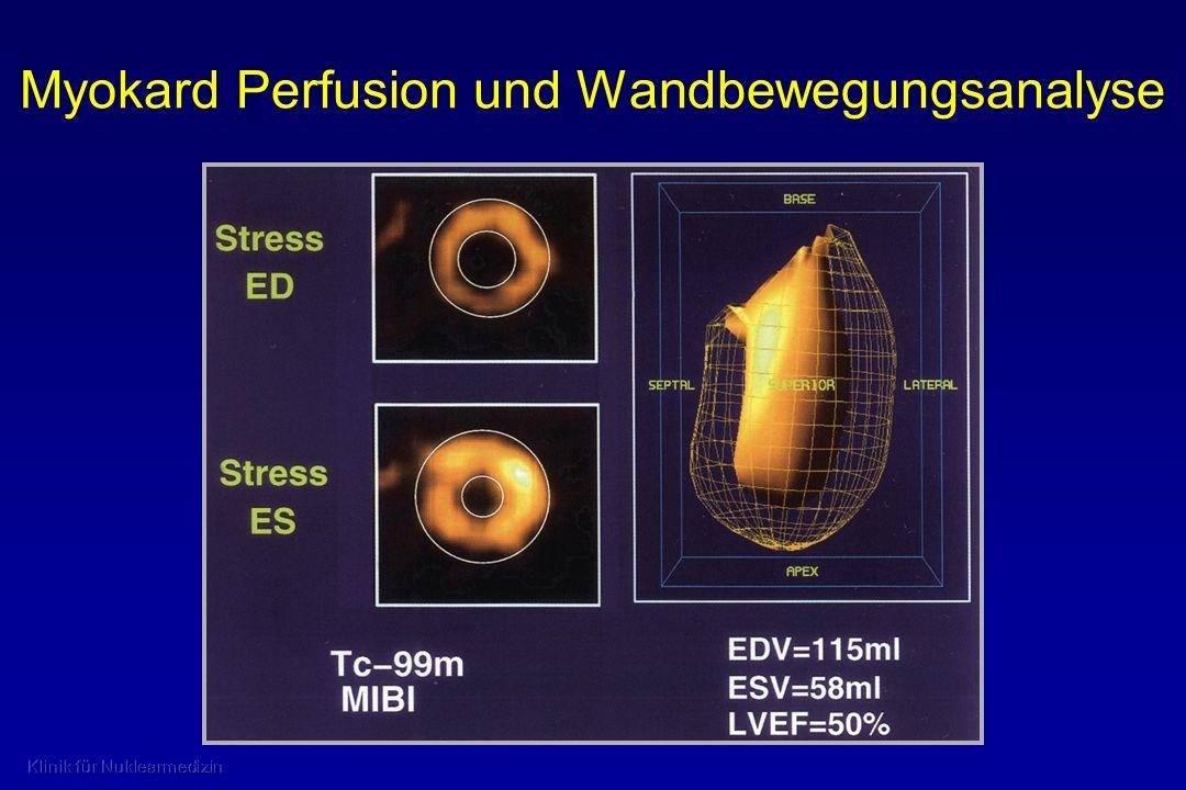 Myokard Perfusion und Wandbewegungsanalyse