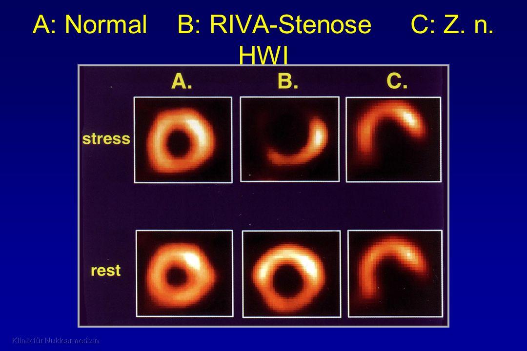 A: Normal B: RIVA-Stenose C: Z. n. HWI