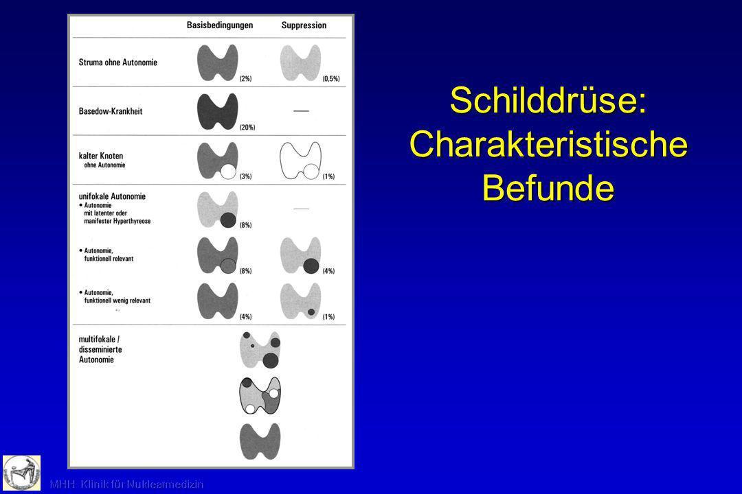 Schilddrüse: Charakteristische Befunde