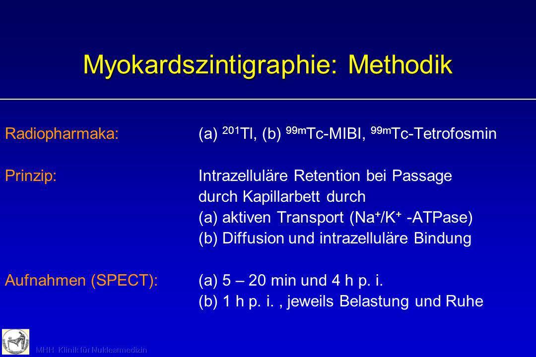 Myokardszintigraphie: Methodik