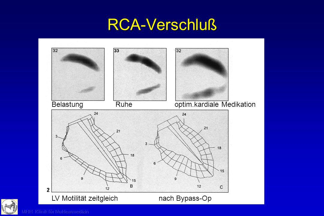 RCA-Verschluß Belastung Ruhe optim.kardiale Medikation