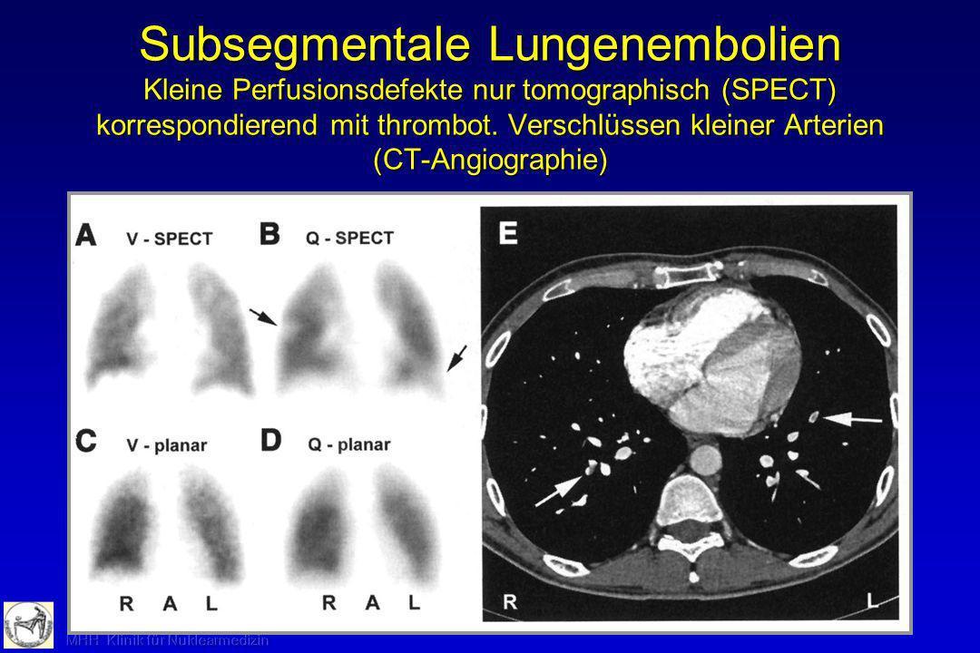 Subsegmentale Lungenembolien Kleine Perfusionsdefekte nur tomographisch (SPECT) korrespondierend mit thrombot.