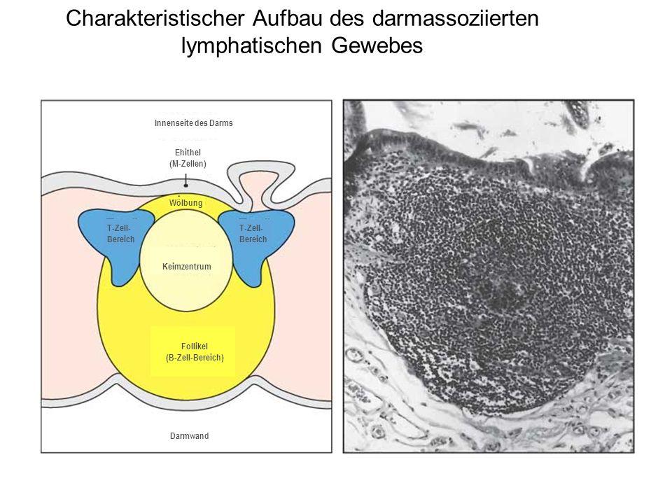 Charakteristischer Aufbau des darmassoziierten lymphatischen Gewebes