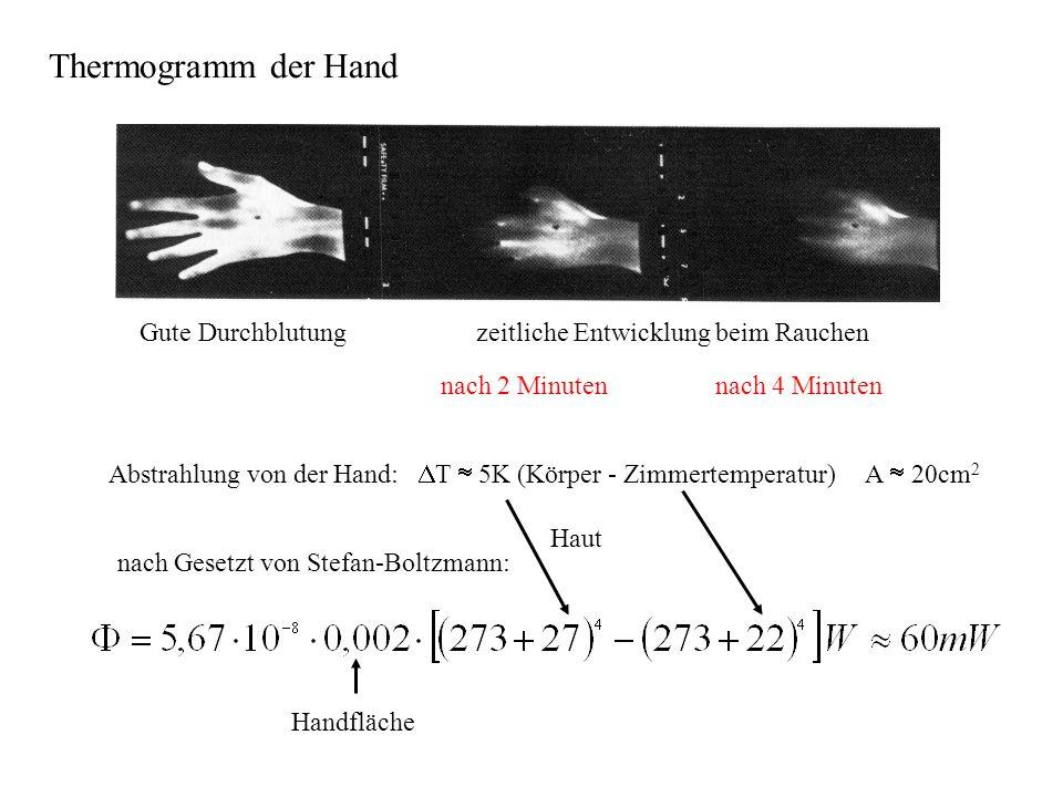 Thermogramm der Hand Gute Durchblutung