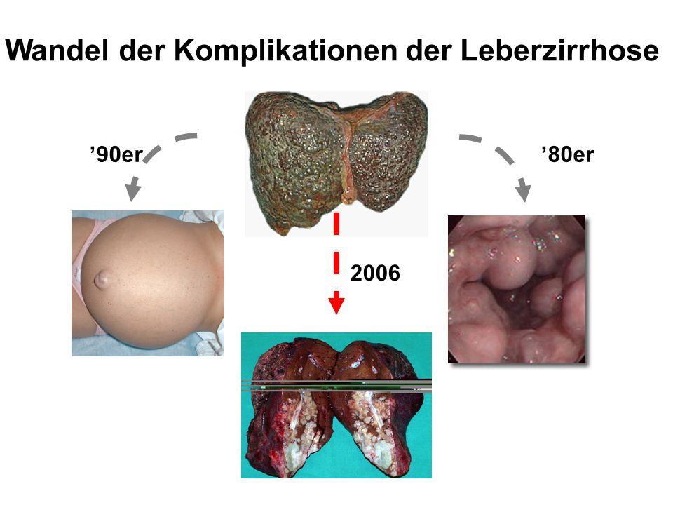Wandel der Komplikationen der Leberzirrhose