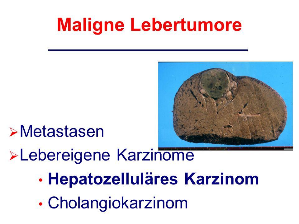 Maligne Lebertumore Metastasen Lebereigene Karzinome