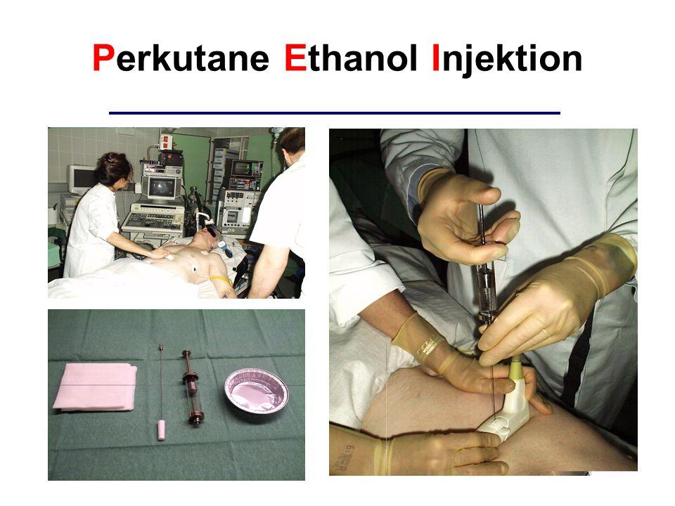 Perkutane Ethanol Injektion