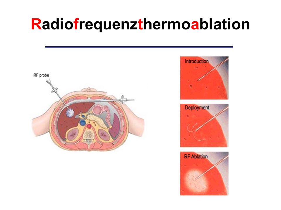 Radiofrequenzthermoablation