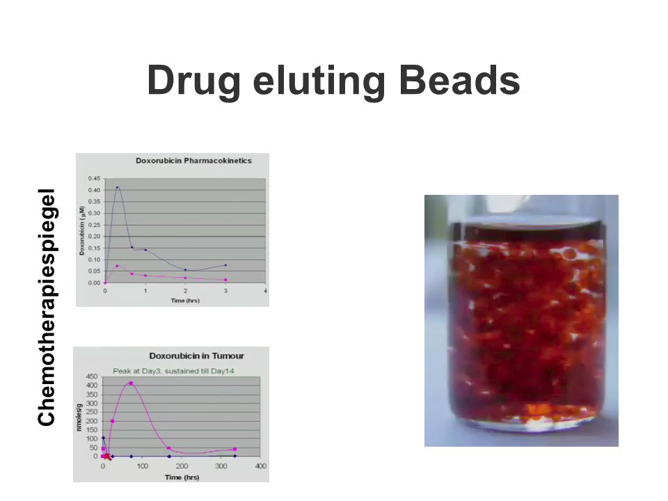 Drug eluting Beads Chemotherapiespiegel