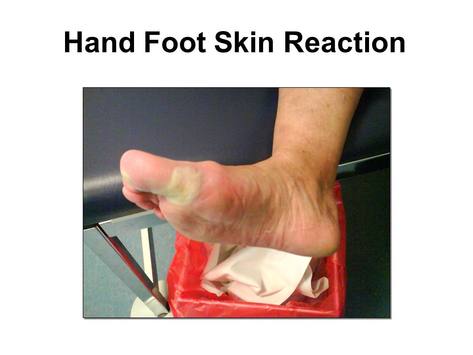 Hand Foot Skin Reaction