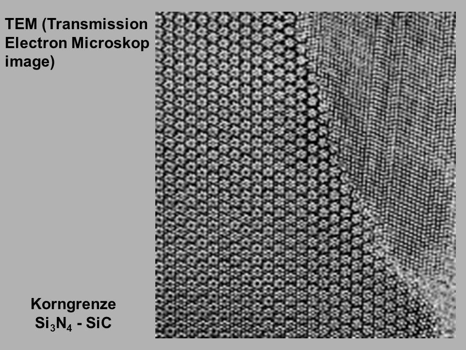 TEM (Transmission Electron Microskop image) Korngrenze Si3N4 - SiC