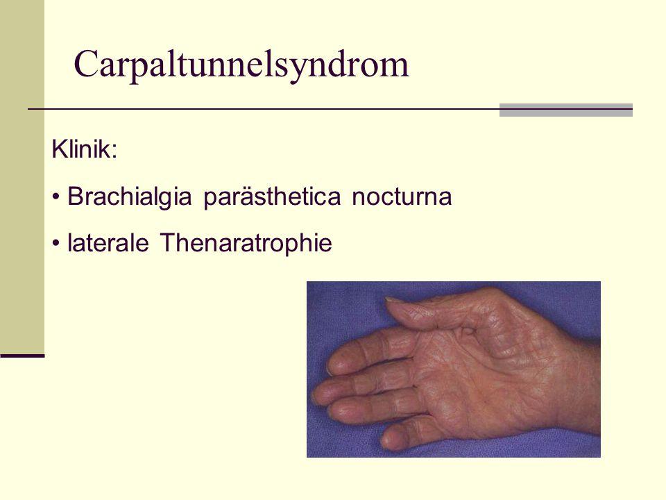 Carpaltunnelsyndrom Klinik: Brachialgia parästhetica nocturna