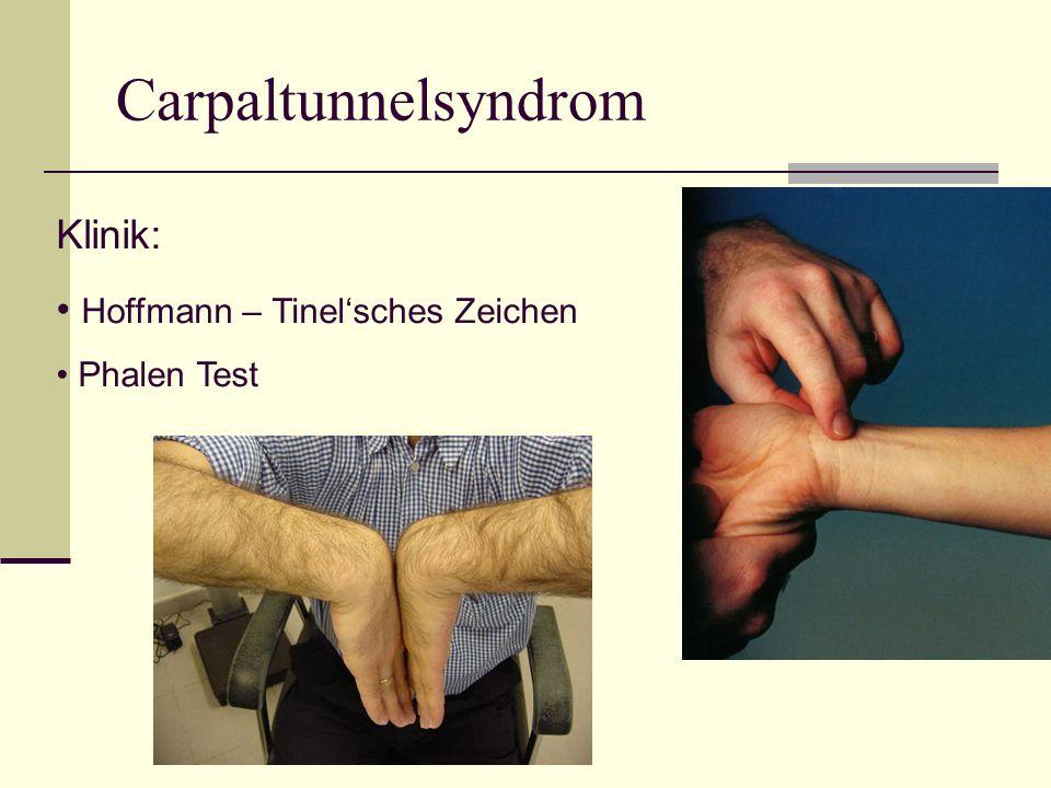 Carpaltunnelsyndrom Klinik: Hoffmann – Tinel'sches Zeichen Phalen Test