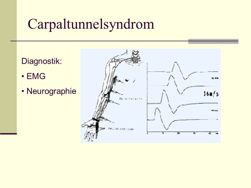 Carpaltunnelsyndrom Diagnostik: EMG Neurographie