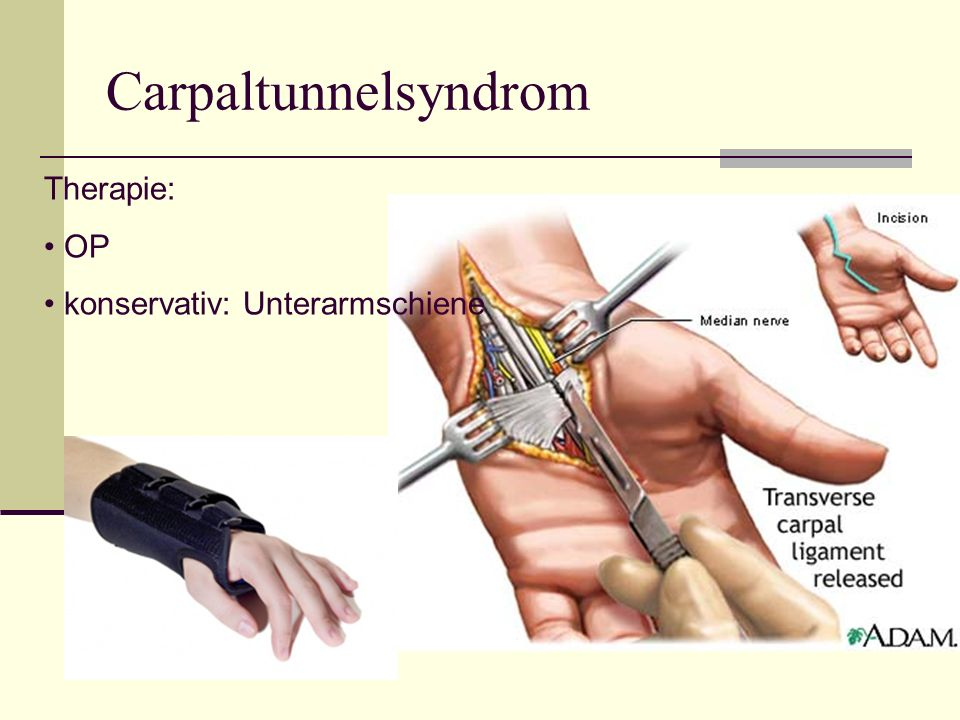 Carpaltunnelsyndrom Therapie: OP konservativ: Unterarmschiene