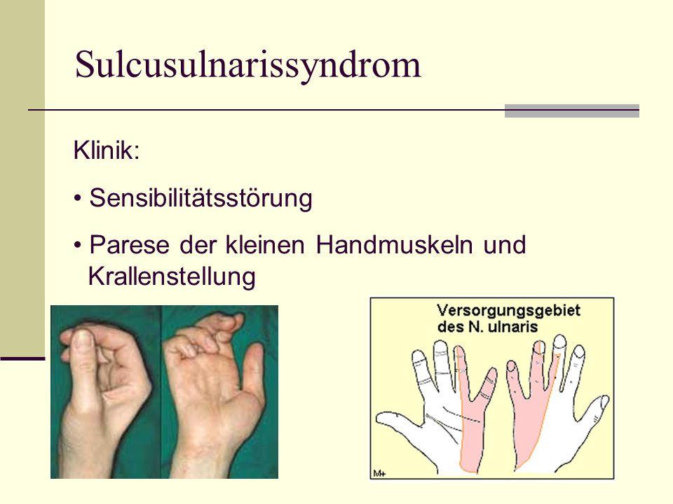 Sulcusulnarissyndrom
