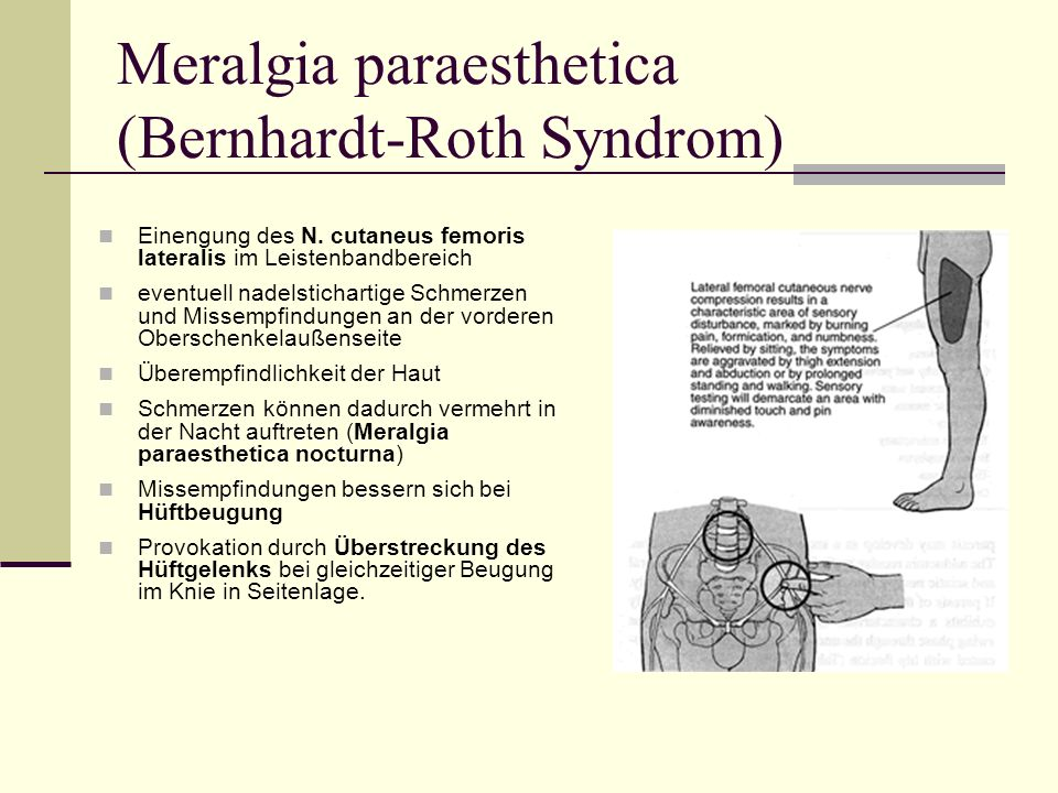 Meralgia paraesthetica (Bernhardt-Roth Syndrom)