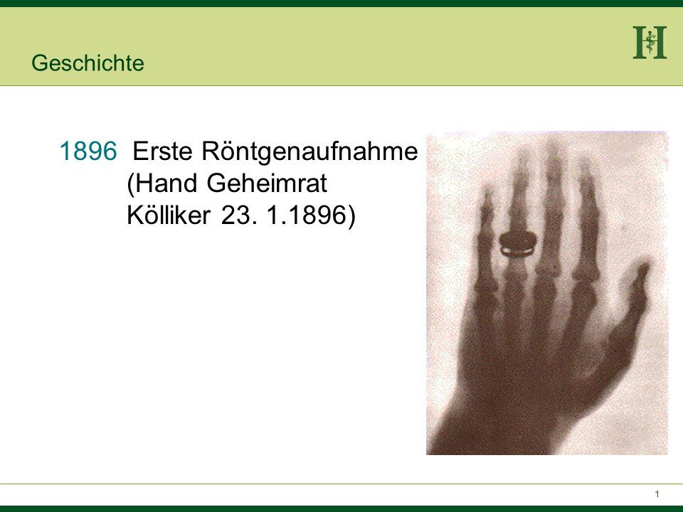 Erste Röntgenaufnahme (Hand Geheimrat Kölliker 23. 1.1896)