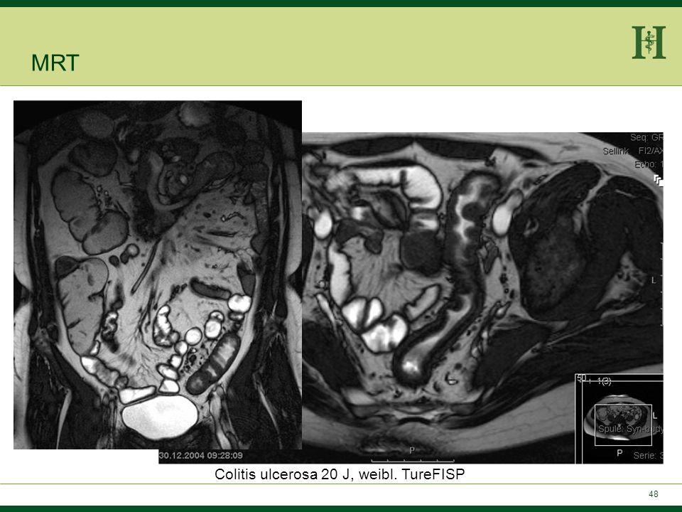 Colitis ulcerosa 20 J, weibl. TureFISP