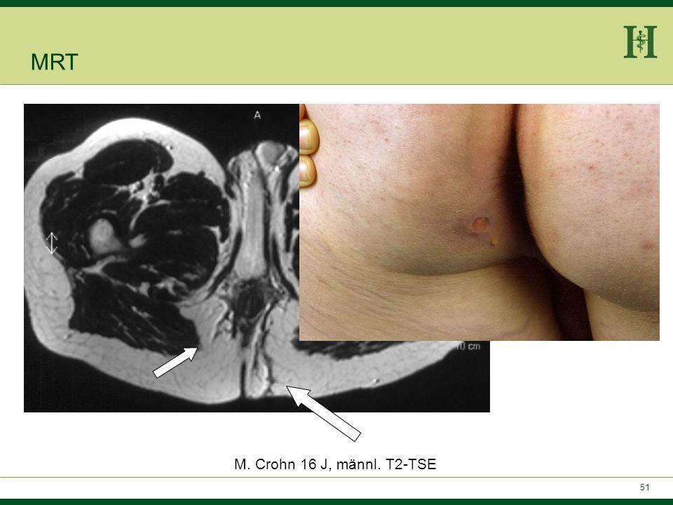 MRT M. Crohn 16 J, männl. T2-TSE