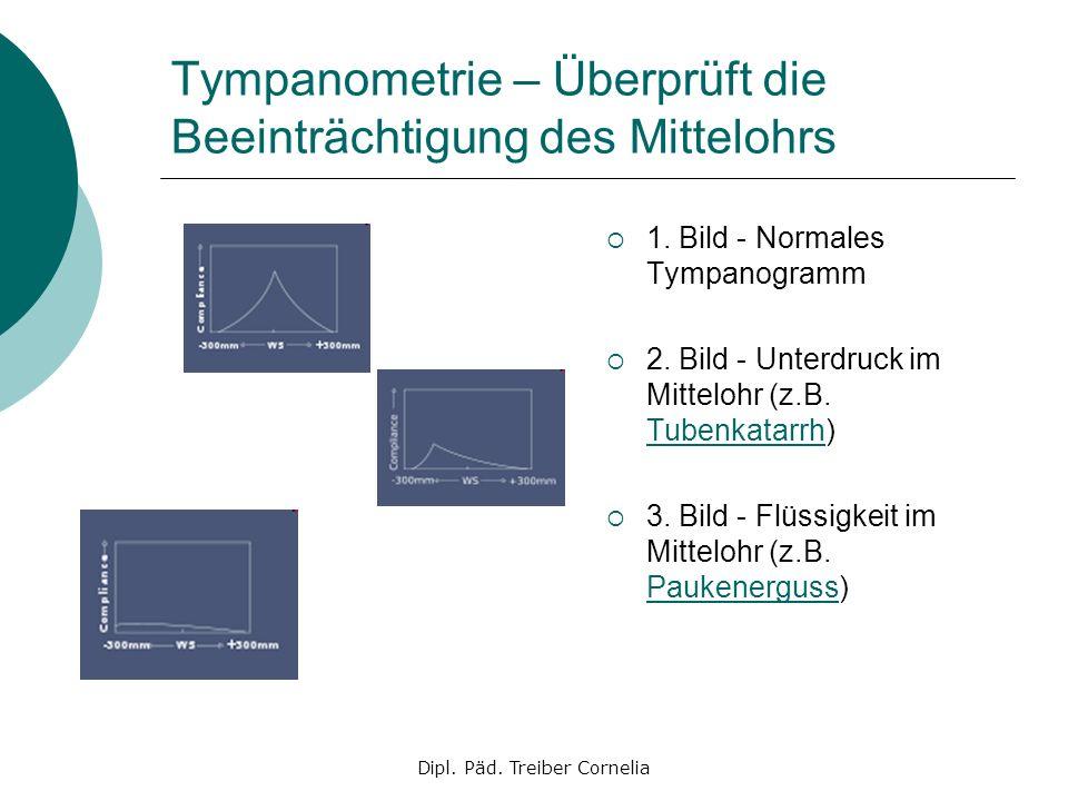 Tympanometrie – Überprüft die Beeinträchtigung des Mittelohrs