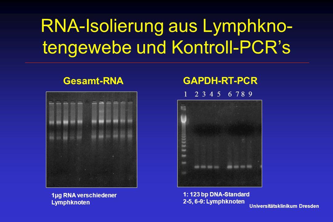 RNA-Isolierung aus Lymphkno-tengewebe und Kontroll-PCR's
