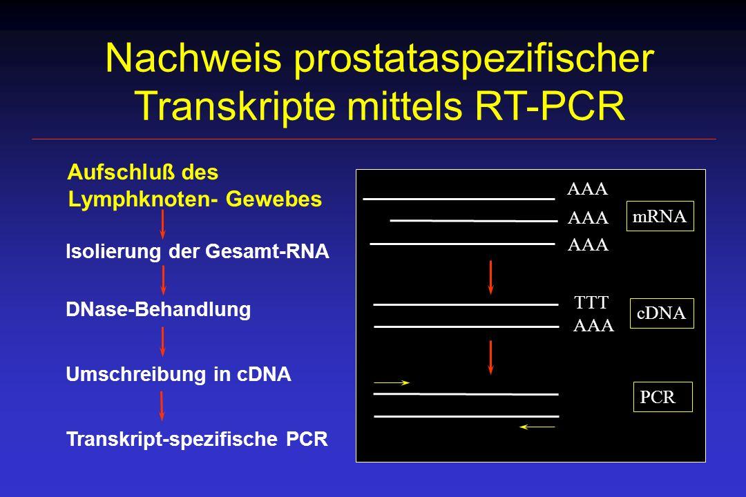 Nachweis prostataspezifischer Transkripte mittels RT-PCR