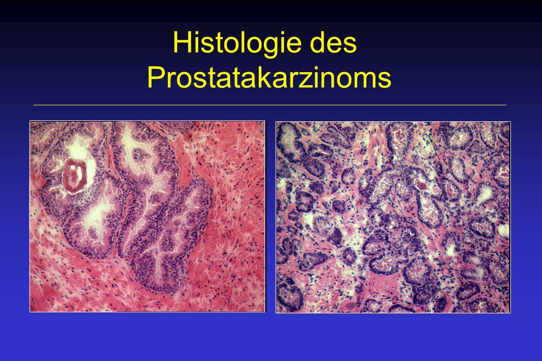 prostatacarcinom alter des patienten therapie