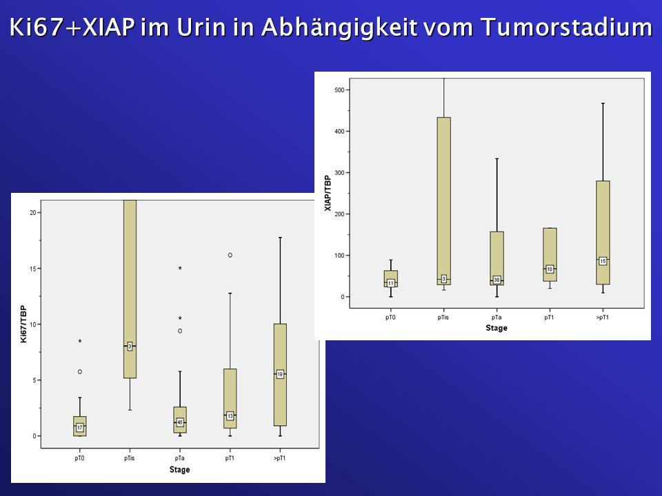 Ki67+XIAP im Urin in Abhängigkeit vom Tumorstadium