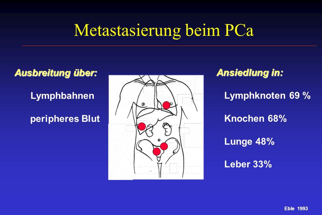 Metastasierung beim PCa