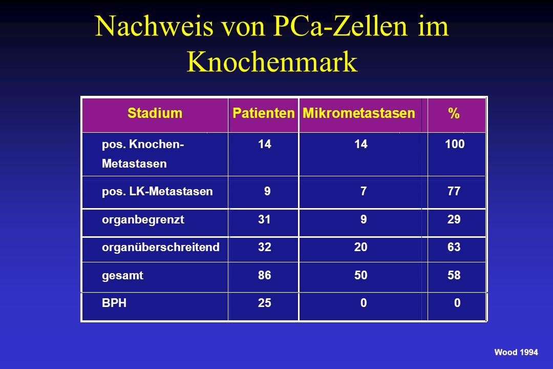 Nachweis von PCa-Zellen im Knochenmark