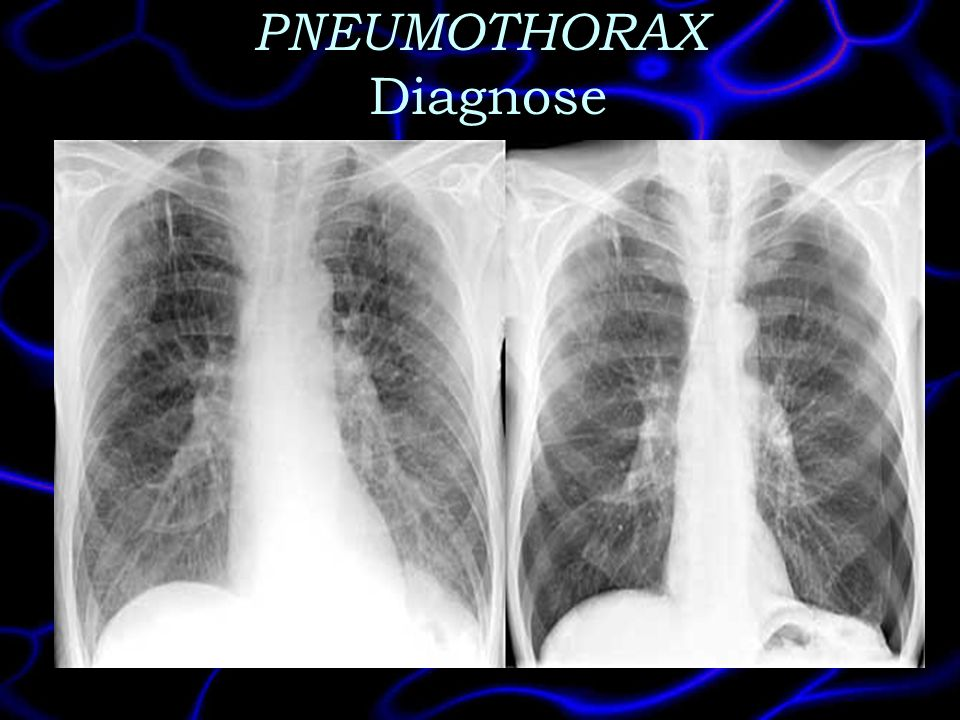 PNEUMOTHORAX Diagnose