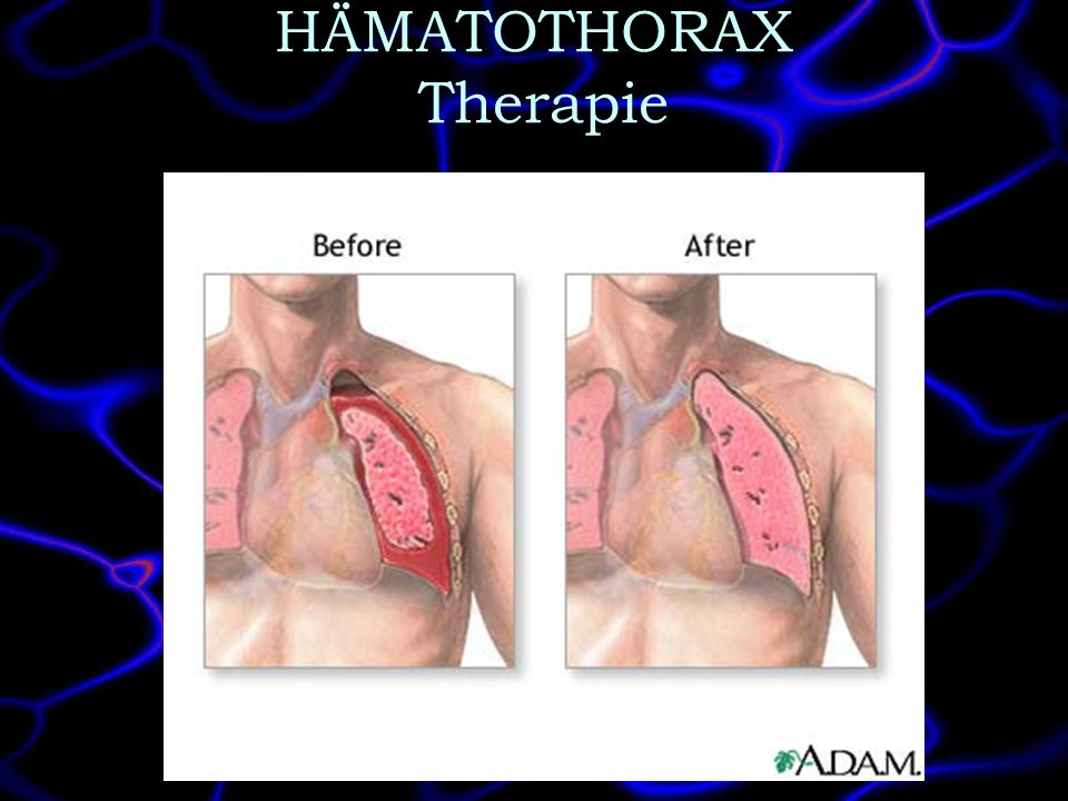 HÄMATOTHORAX Therapie
