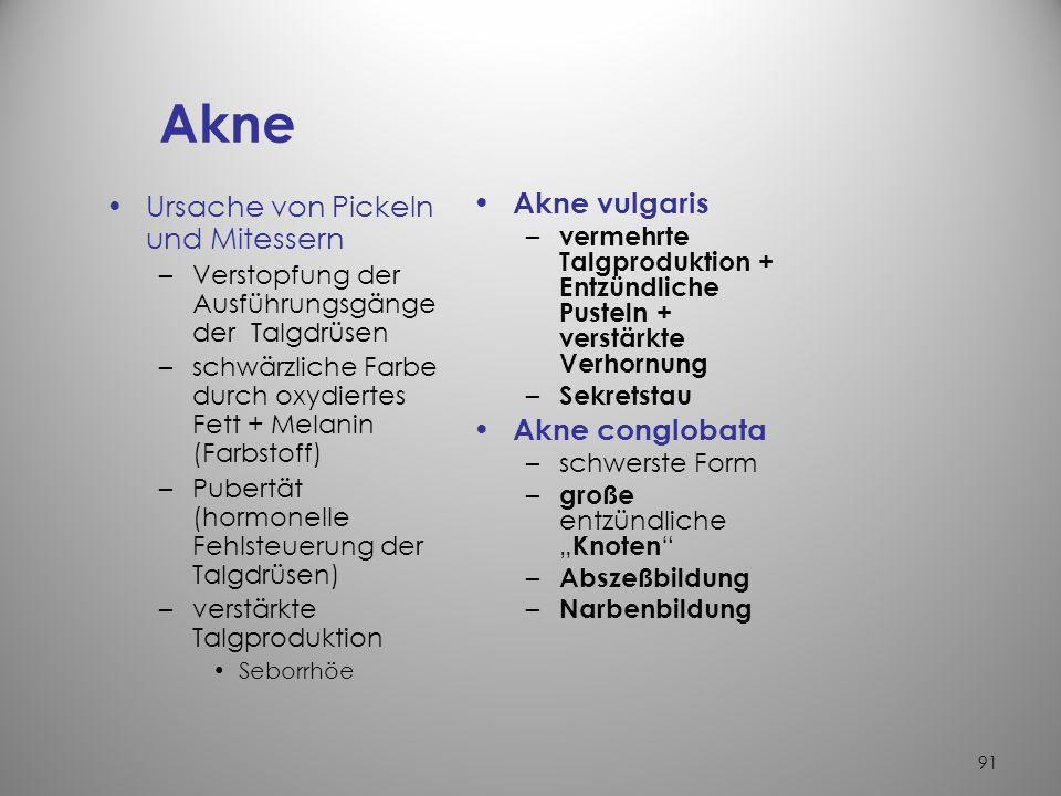 Akne Ursache von Pickeln und Mitessern Akne vulgaris Akne conglobata