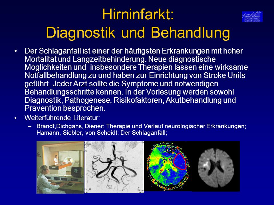Hirninfarkt: Diagnostik und Behandlung