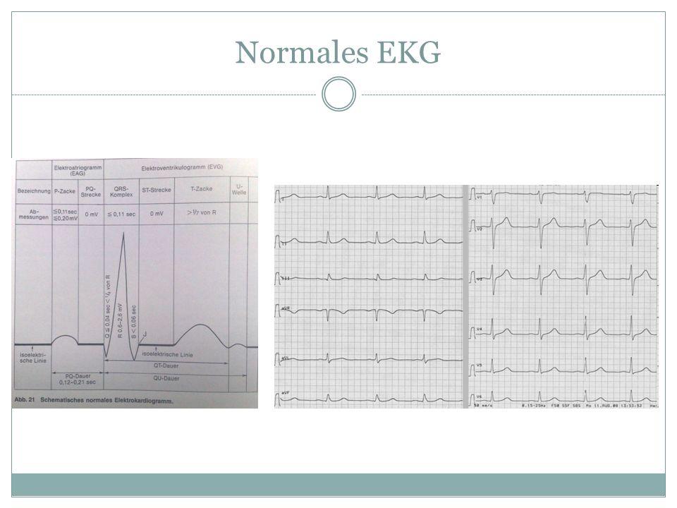 Normales EKG